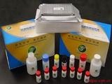 人n-DNA-Ab检测Elisa试剂盒