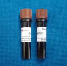 CAS#:9087-70-1抑肽酶
