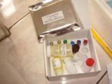人抗腮腺管抗体(anti-parotid duct Ab)ELISA试剂盒