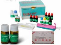 垂草扁桃酸(VMA)检测试剂盒(酶联免疫吸附试验法)