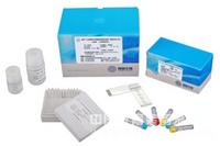 猪狂犬病病毒抗体(RV Ab)ELISA试剂盒