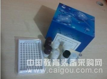 人凝血因子Ⅸ(FⅨ)ELISA试剂盒