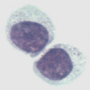 非洲绿猴肾细胞系,Vero-HCV-C