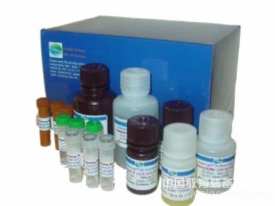 人HBV preS2Ab试剂盒,HBV preS2Ab ELISA KIT,人乙型肝炎病毒前S2抗体试剂盒
