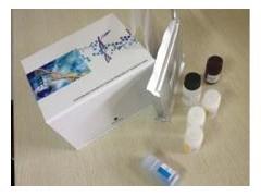 AIRA,人抗胰岛素受体抗体ELISA试剂盒价格