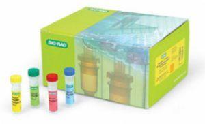 人热休克蛋白糖蛋白96(HSP gp96)ELISA试剂盒  规格