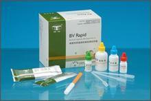 人trypsin试剂盒,trypsin ELISA KIT,人胰蛋白酶试剂盒