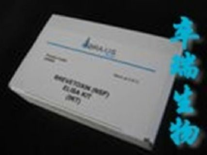 人可溶性P选择素(sP-selectin)Elisa试剂盒