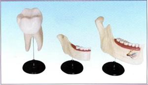 乳牙恒牙排列模型