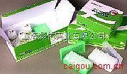 狂犬病毒抗体(IgG\IgM)金标测试盒
