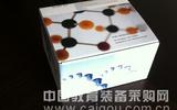 人血管紧张素转化酶(ACE)ELISA试剂盒