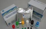 人胸腺基质淋巴细胞生成素(TSLP)ELISA Kit