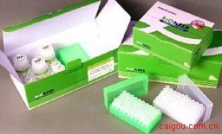 人类白细胞抗原AElisa试剂盒,HLA-A试剂盒