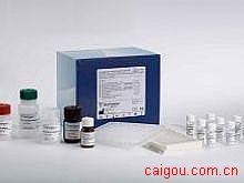 大鼠TNFsR-Ⅱ,肿瘤坏死因子可溶性受体ⅡElisa试剂盒
