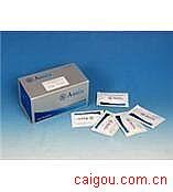 人ACE,血管紧张素转化酶Elisa试剂盒