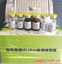 人α1微球蛋白(α1-MG)ELISA Kit