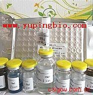 腺病毒IgA(ADV IgA)ELISA试剂盒
