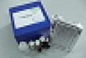 凝血酶血栓调节蛋白复合物ELISA试剂盒厂家代测,进口人(T-TM)ELISA Kit说明书