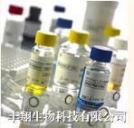 小鼠纤溶酶原激活剂抑制物(PAI-I)ELISA试剂盒