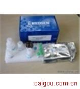 (PK)人丙酮酸激酶Elisa试剂盒