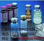 人红细胞生成素受体(EPO sR)ELISA试剂盒