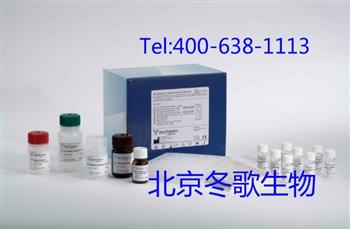 Human胶原酶I,人(Collagenase I)elisa试剂盒